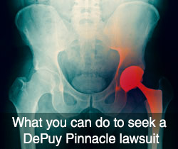 What you can do to seek a DePuy Pinnacle lawsuit
